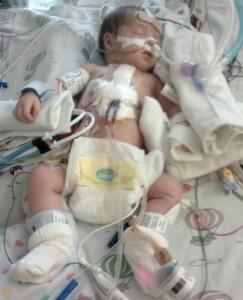 HopeForEvangelina-baby-hospital