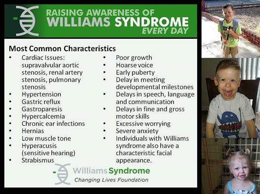 William syndrome characteristics