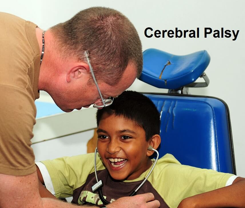 Associated Cerebral Palsy Conditions and Disorders by Alex Diaz-Granados